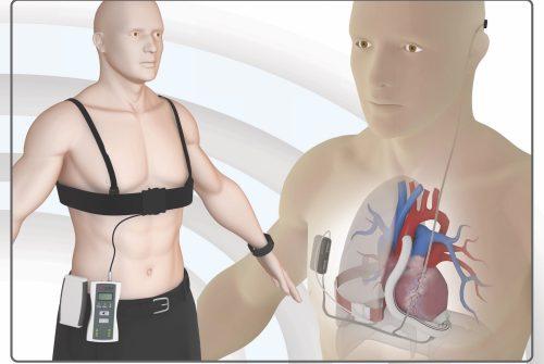 Cuore Artificiale Wireless - Fonte: Policlinico Gemelli